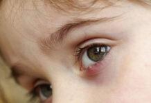 8 Mẹo chữa lẹo mắt hiệu quả được các bác sĩ nhãn khoa chứng nhận