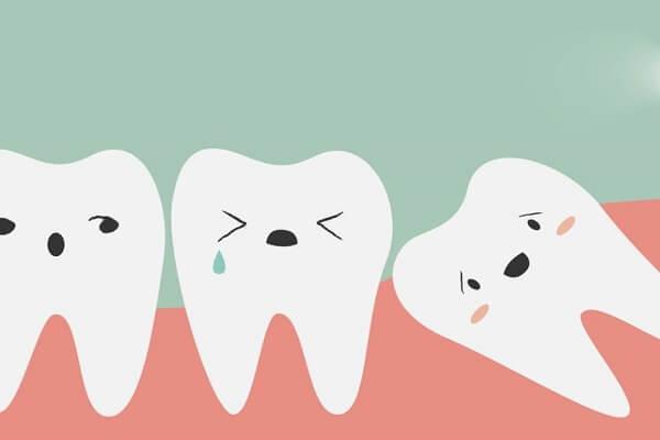 Giá nhổ răng khôn có đắt không? Có nên nhổ răng khôn không?