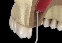Nâng xoang trong cấy ghép implant là gì? Có cần thiết không?