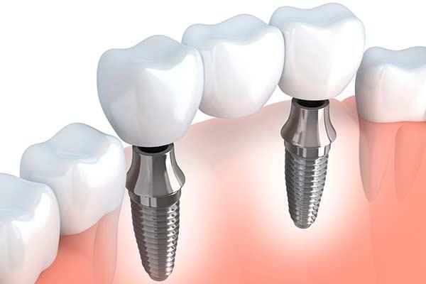 Nâng xoang trong cấy ghép implant nhằm mục đích đảm bảo đủ vị trí cho việc đặt chân răng impant