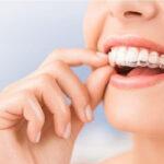 Niềng răng trong suốt có mấy loại? Vì sao được yêu thích?